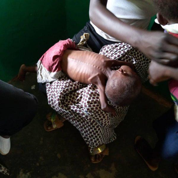 Cas de malnutrition sévère